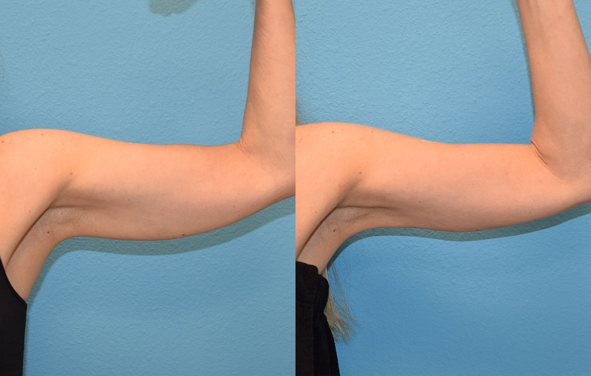 Bodytite, skin tightening and fat reduction, to the arms by Dr. Maningas in Joplin, MO