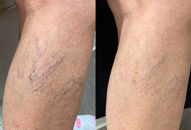 Sclerotherapy for spider veins at Maningas Cosmetic Surgery in Joplin, MO, Northwest Arkansas, Southeast Kansas, Northeast Oklahoma.