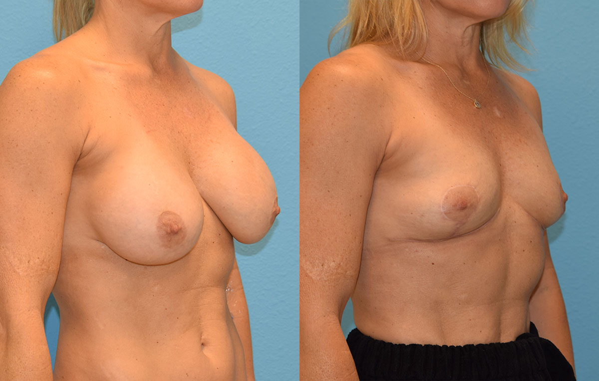Implant Removal with a Breast Lift by Dr. Maningas at Maningas Cosmetic Surgery in Joplin, MO
