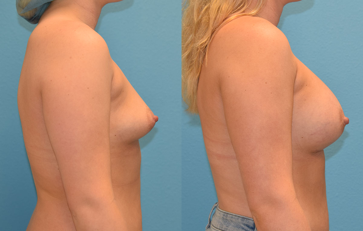 4 months post-op results of a breast augmentation with 450cc implants by Dr. Talon Maningas at Maningas Cosmetic Surgery in Missouri