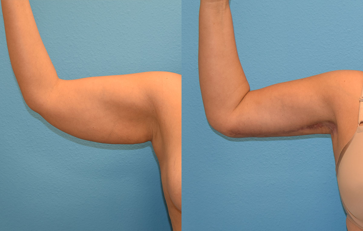 Arm Lift results by Dr. Maningas at Maningas Cosmetic Surgery in Joplin, MO