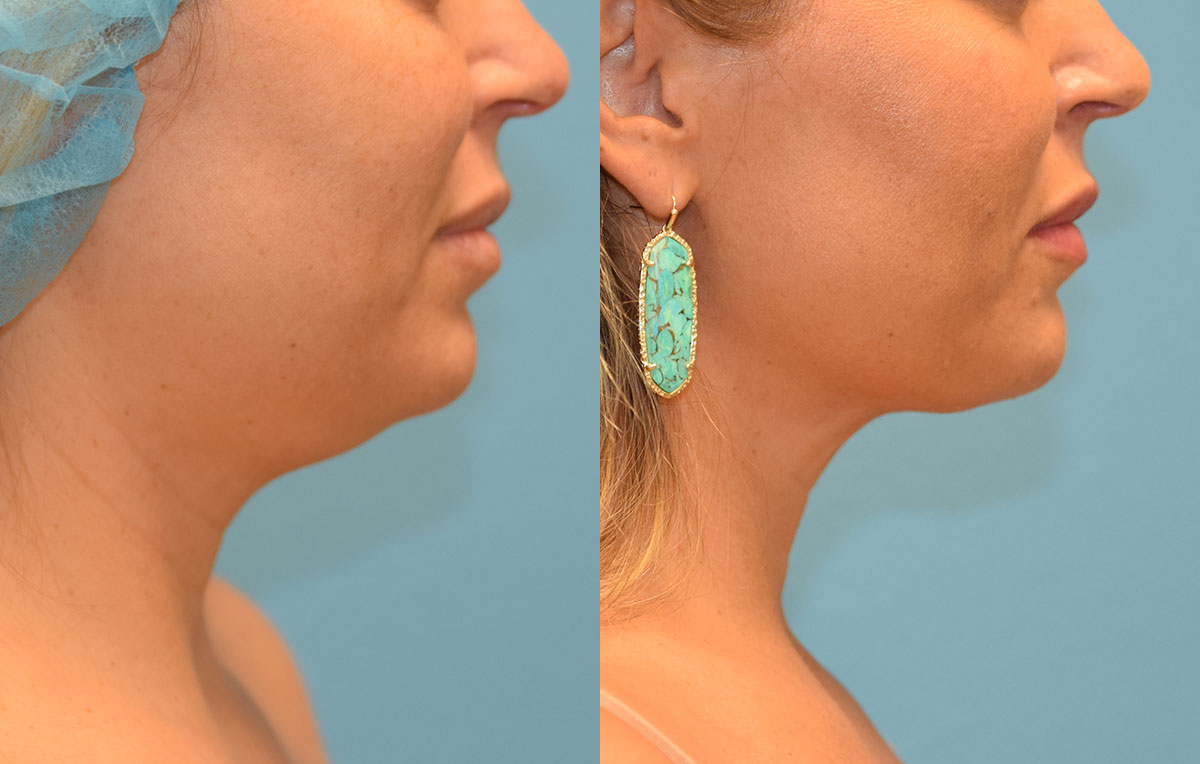 Facetite and Morpheus8, aka EmbraceRF, 4 month results at Maningas Cosmetic Surgery in Joplin, MO.