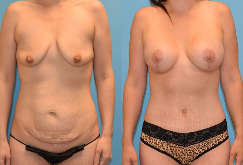 Mommy Makeover, tummy tuck and a breast augmentation with a lift, results by Dr. Maningas at Maningas Cosmetic Surgery in Joplin, MO