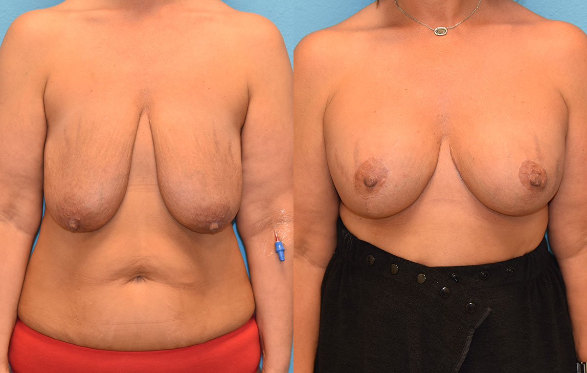 7 months post-op results of a breast lift with 375cc implants by Dr. Talon Maningas at Maningas Cosmetic Surgery in Missouri