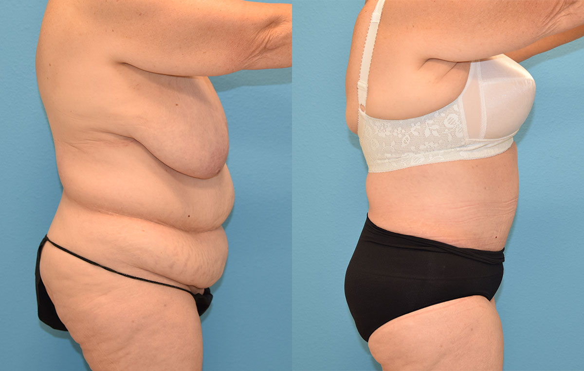 Fleur de lis Tummy tuck results by Dr. Maningas at Maningas Cosmetic Surgery in Joplin, MO