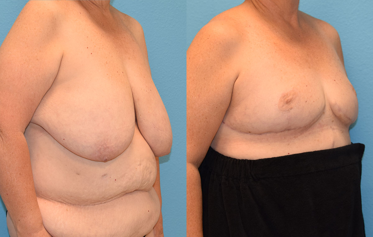 Breast reduction with a lift results by Dr. Maningas at Maningas Cosmetic Surgery in Joplin, MO