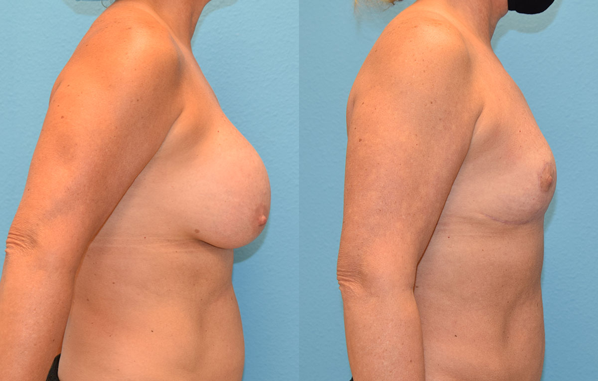 6 months post-op results of an implant implant removal and en bloc capsulectomy with a breast reduction lift by Dr. Maningas at Maningas Cosmetic Surgery in Missouri