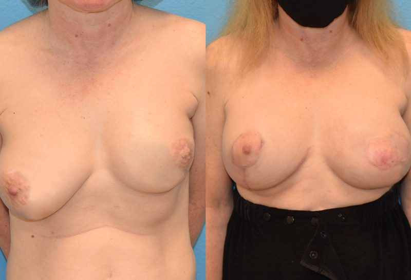 Breast revision surgery including a breast implant exchangeto the left and new implant to the right with fat transfer and a free nipple graft by Dr. Maningas in Joplin, MO